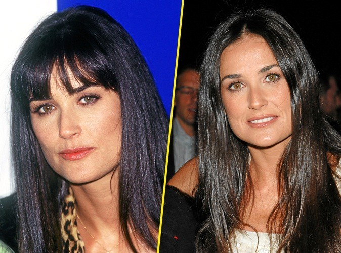 Quand on aime l'acide Hyaluronique, on a toujours 30 ans... hein Demi Moore !