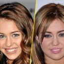 Miley Cyrus : avant/après une chirurgie des lèvres