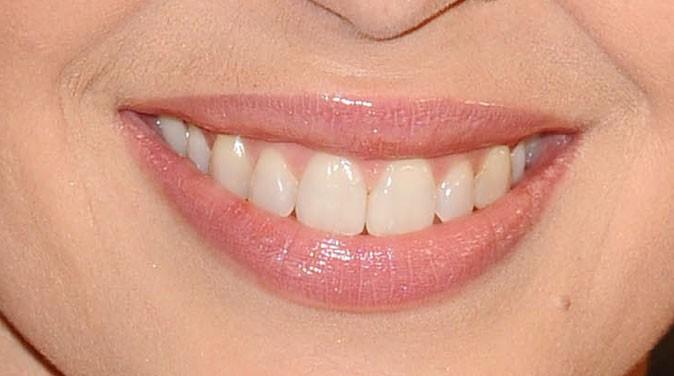 Des dents bien alignées pour la chanteuse australienne !