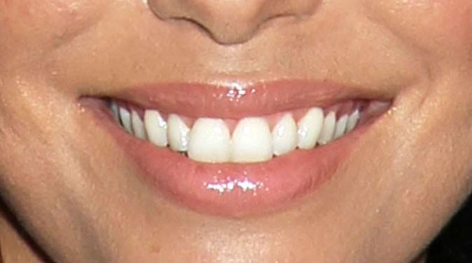Des dents bien blanches pour la Desperate Housewife !