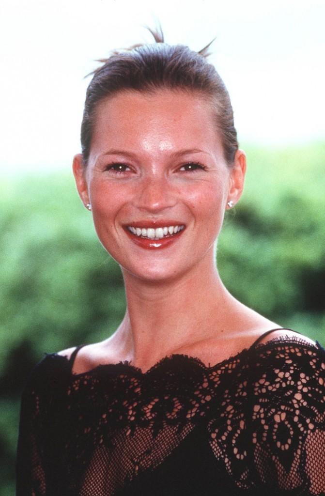 Kate Moss en 1999 : s'est-elle fait refaire les dents ?