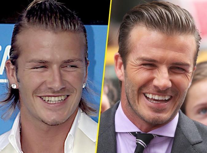 Dents de stars : ont-ils toujours affiché un sourire aussi parfait ?