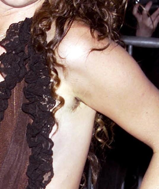 A qui sont ces poils?