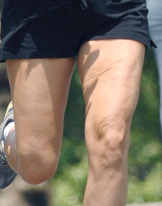 Photo : beurk, la cellulite sur les cuisses de Kate Hudson !