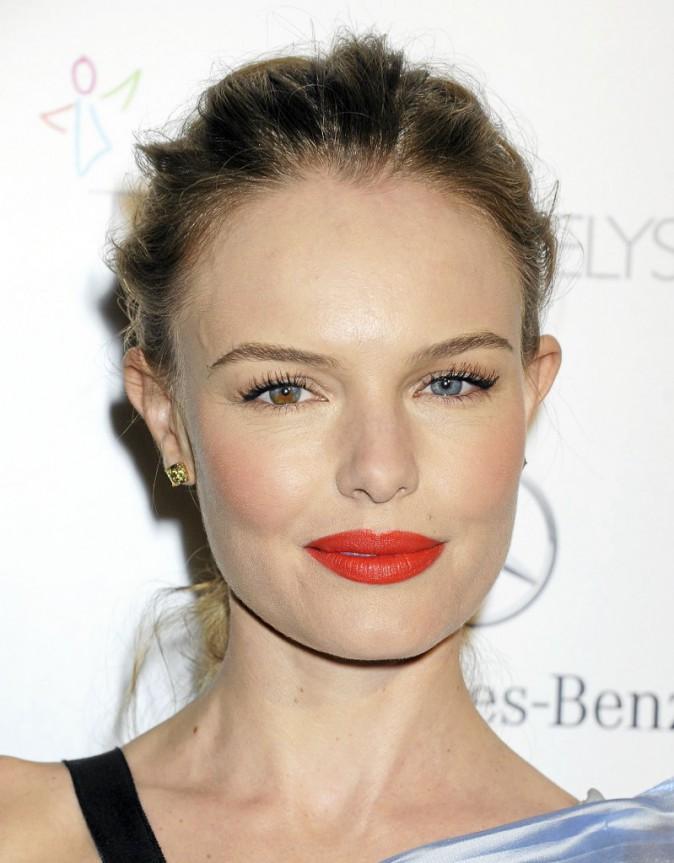 Les lèvres pigmentées de Kate Bosworth