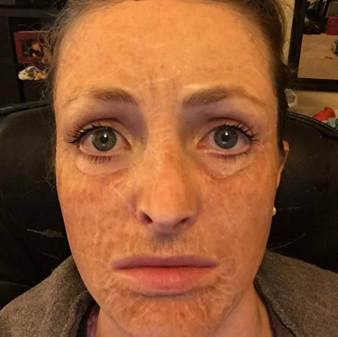 Soins : Hanacure : Ce masque coréén qui vieillit instantanément la peau affole la toile