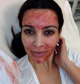 "Kim Kardashian a succombé au ""Lifting Vampire"" !"