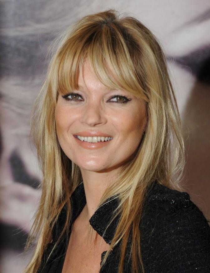 Kate Moss assume sa dentition imparfaite !