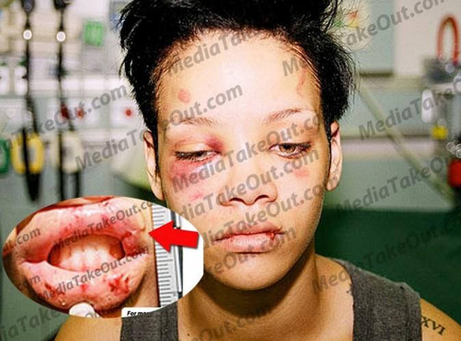 Affaire Rihanna et Chris Brown: de nouvelles photos choquantes !
