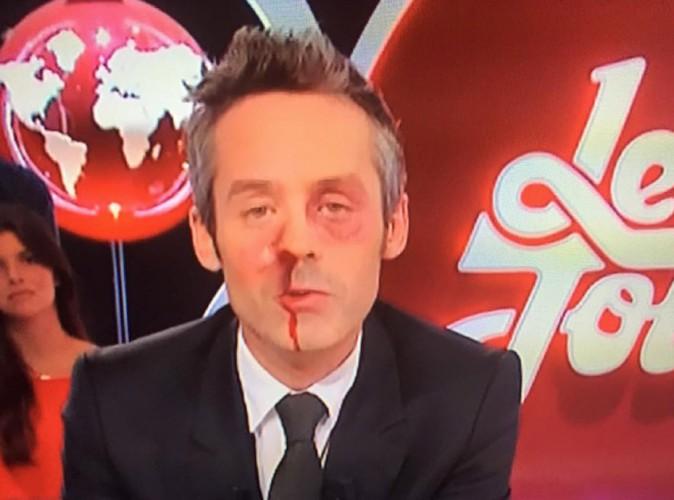 Agression des journalistes du Petit Journal : Yann Barthès en sang, la toile tacle le FN !