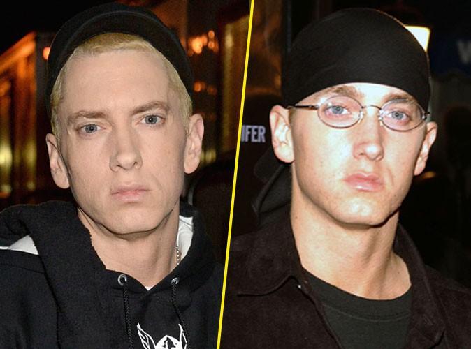Eminem : le rappeur défiguré…