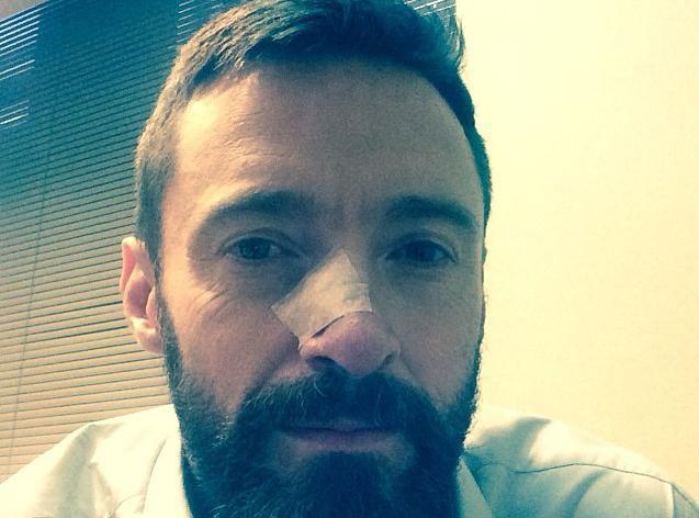 Hugh Jackman : atteint d'un nouveau cancer de la peau...