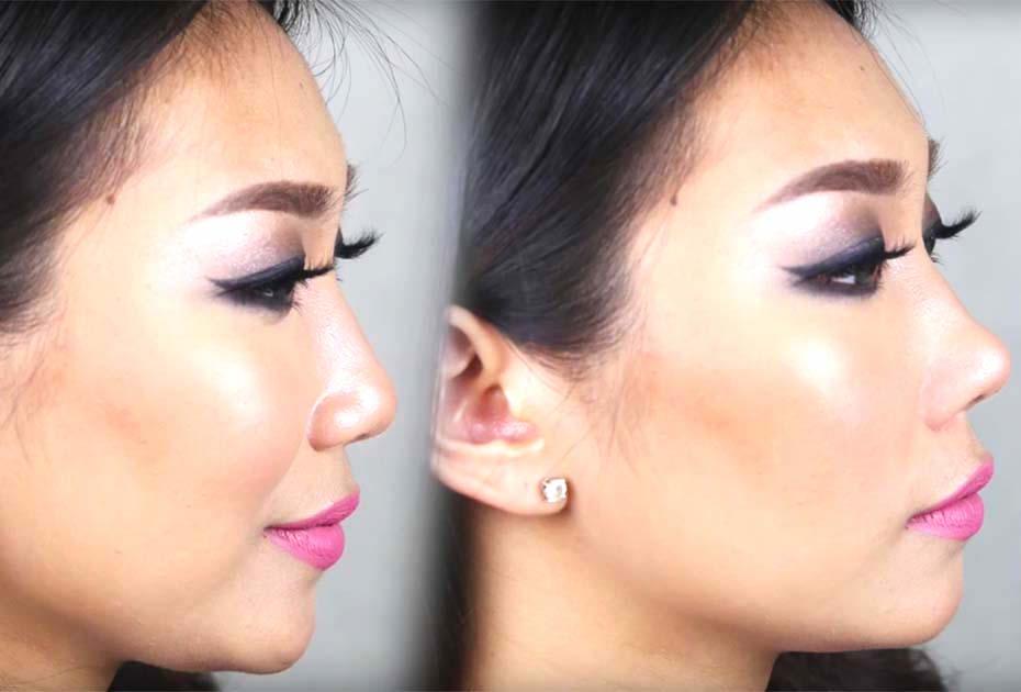 Il est visiblement possible de modifier son nez en 30 secondes sans chirurgie esthétique