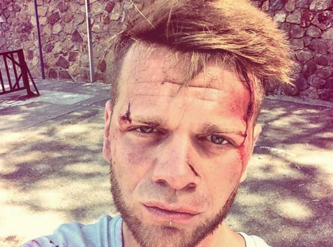 Keen'V : blessé sur le tournage de son nouveau clip ?