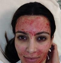 Kim Kardashian : accro ? la chirurgie, elle se fait injecter son propre sang sur le visage !