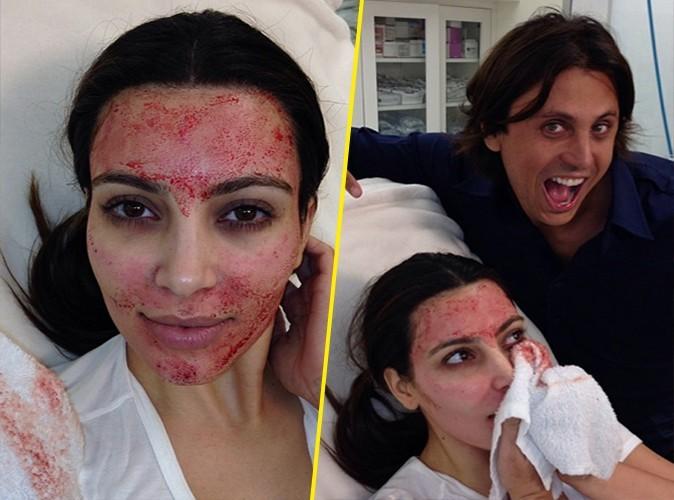 Kim Kardashian : accro à la chirurgie, elle se fait injecter son propre sang sur le visage !