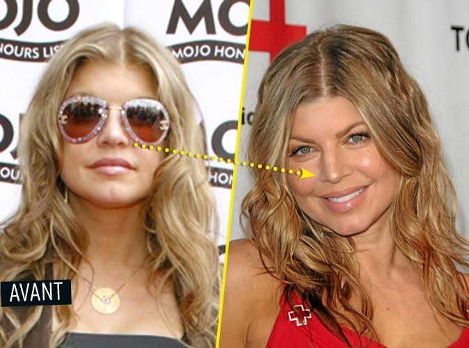 Chirurgie esthétique : Fergie s'est fait refaire le nez