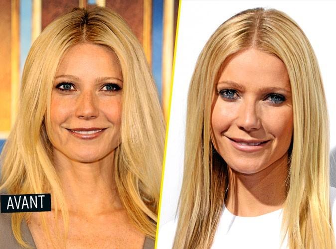 Chirurgie esthétique : Gwyneth Paltrow se fait des injections de Botox
