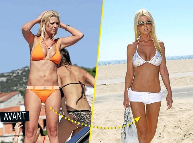 Chirurgie esthétique : Tara Reid s'est fait refaire le nez, les seins, les cuisses, les...