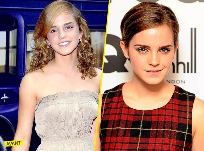Elles ont bien changé : en mieux ! Emma Watson !