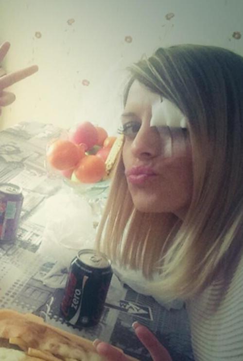 Photos : Alexia Mori : gravement blessée à l'œil gauche !