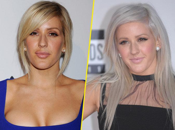 Ellie Goulding a-t-elle eu recours à la chirurgie esthétique ?
