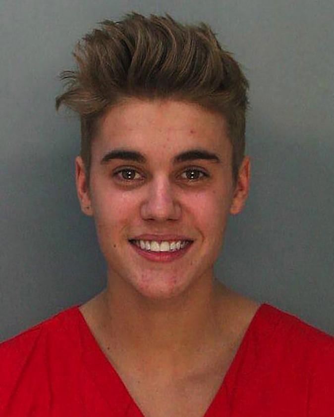 Justin Bieber a déjà été victime d'un burn-out !
