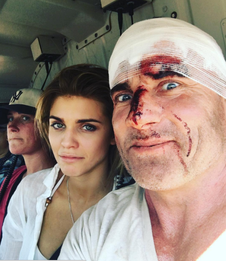 "Photos : Dominic Purcell : L'acteur de ""Prison Break"" gravement blessé sur le tournage !"