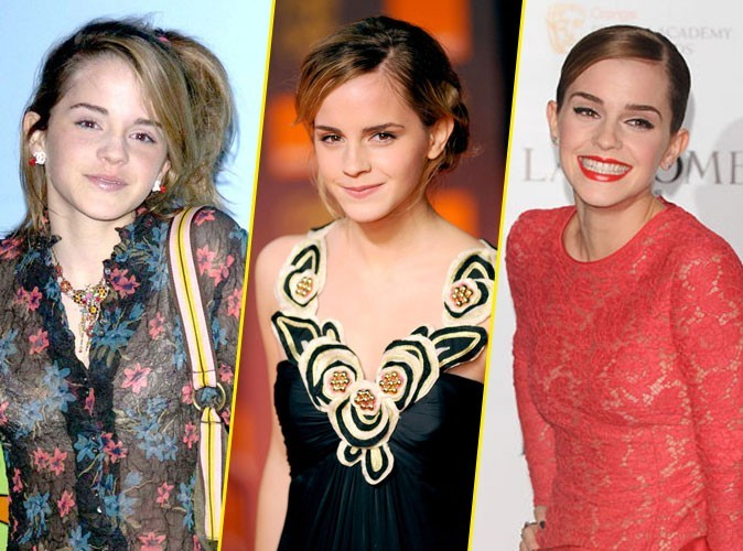 Photos : Emma Watson : à 22 ans, la jeune magicienne d'Harry Potter est ensorcelante !