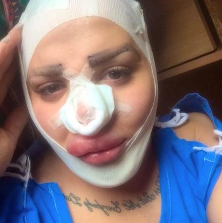 Photos : Jordan James : nouvelle rhinoplastie pour le fan number one de Kim Kardashian !