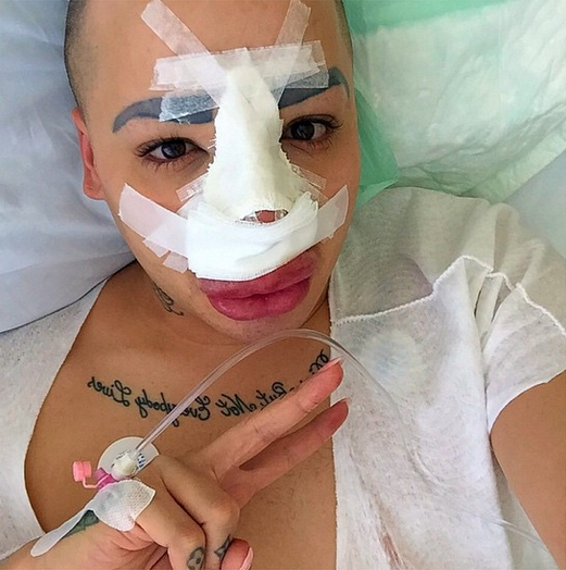 Photos : Jordan James Parke : après les liftings, la rhinoplastie !