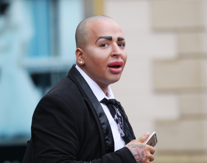 Photos : Jordan James Parke : la graisse du dos réinjectée dans le fessier pour avoir le booty de Kim Kardashian !