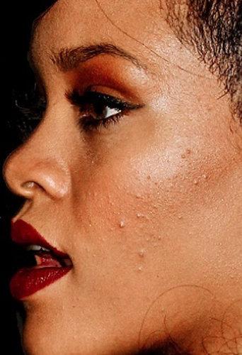 Rihanna a une peau à problèmes, même avec maquillage !