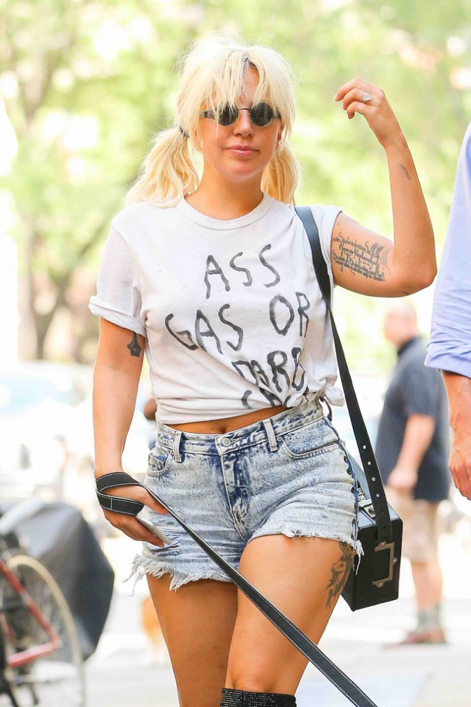 Lady Gaga : Elle se bat tous les jours contre son problème de hanches !