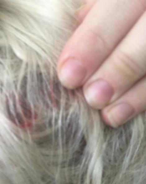 Photos : Miley Cyrus visage en sang, les blessures qui inquiètent...