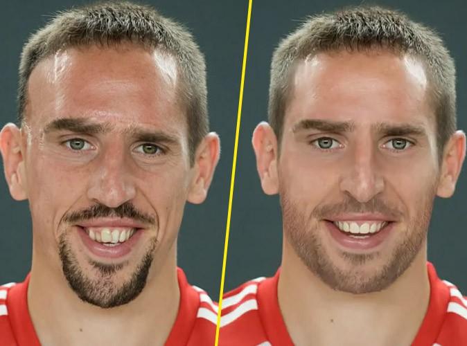 Vidéo : A quoi ressemblerait Franck Ribéry s'il n'avait pas eu son accident ?